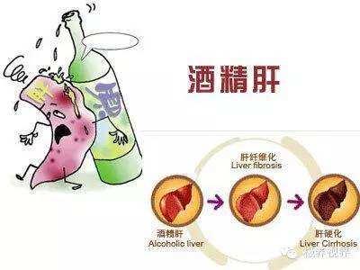 50%的中国人酒精代谢先天不足,每次醉酒相当于得一次肝炎